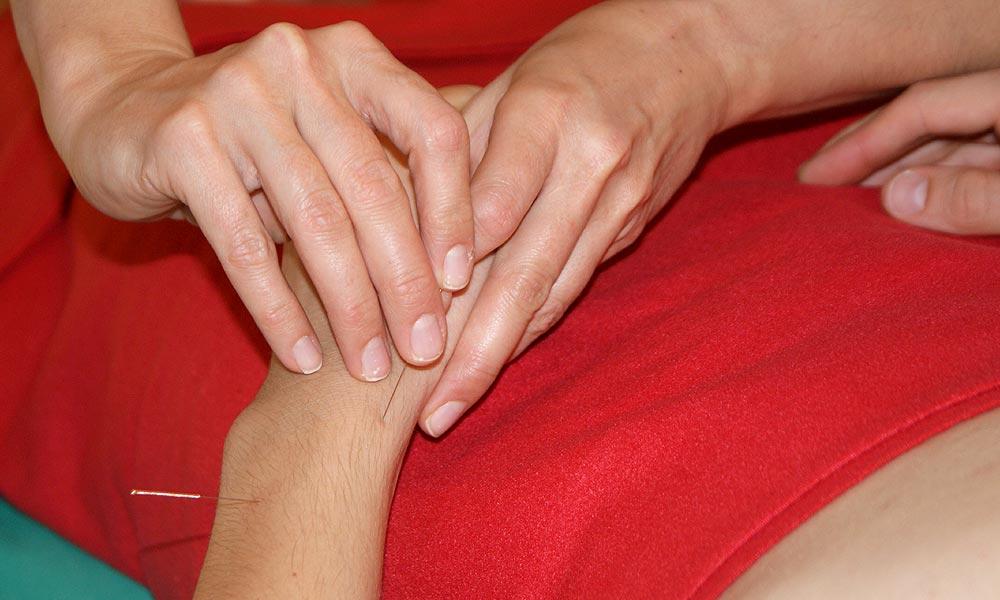 nto-heilpraxis_Akupunktur